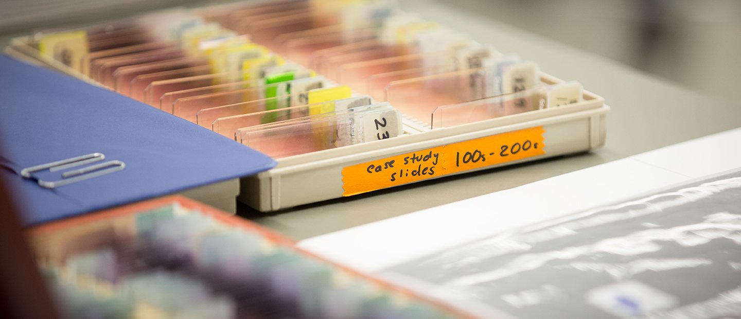 Tray of slides labeled case study slides 100s-200s